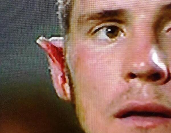 Slades ear